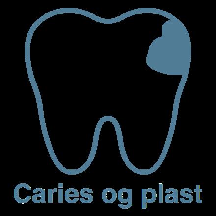 Caries og plast Tandlægerne Classensgade