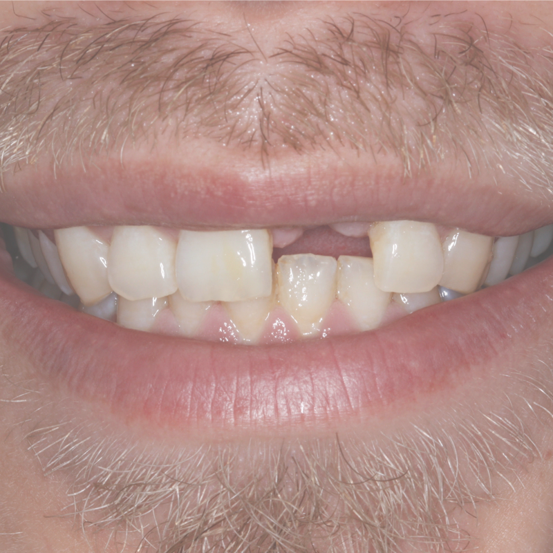 Smil uden tand