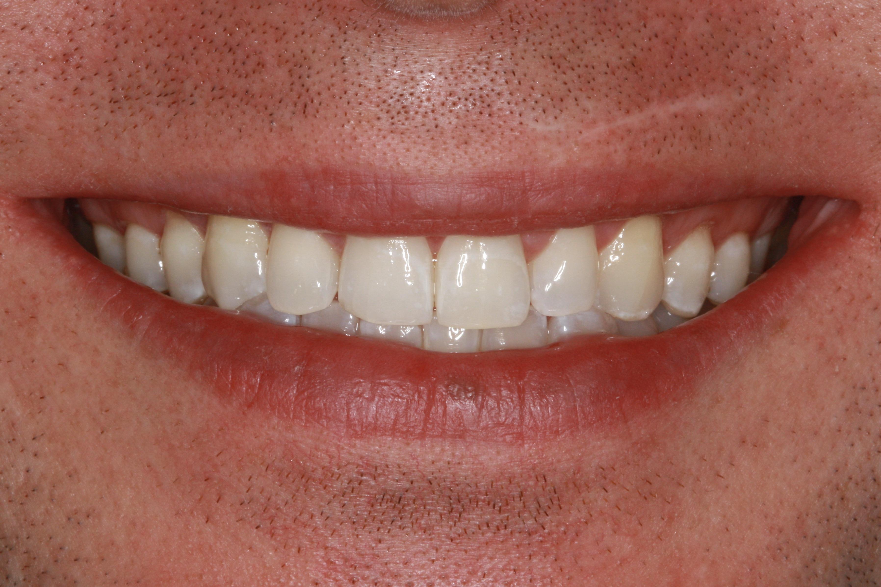 Tandlægerne Classensgade blegning